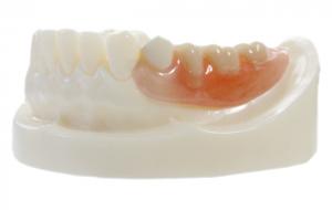ノンクラスプデンチャー(金属の留め金のない入れ歯)
